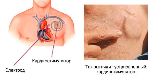 имплантированный кардиостимулятор