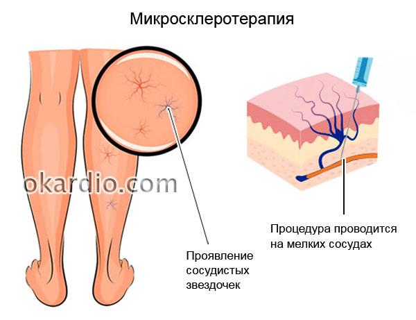 микросклеротерапия