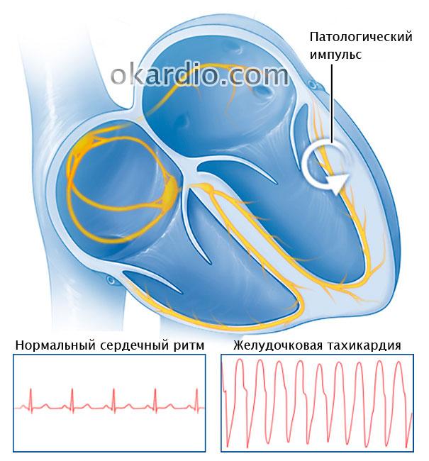 импульс при желудочковой тахикардии