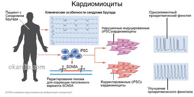 кардиомиоциты при синдроме Бругада