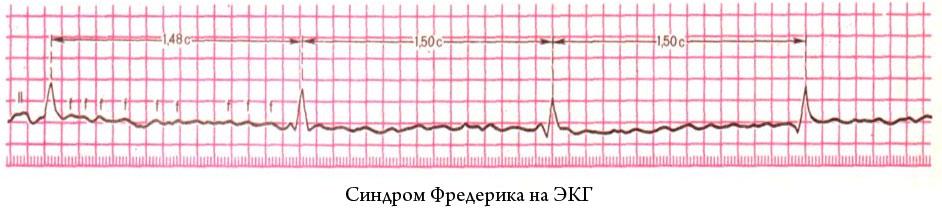 Синдром Фредерика: причины, симптомы, проявления на ЭКГ, лечение