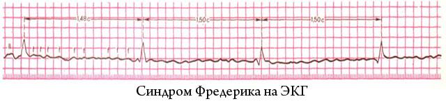 синдром Фредерика на ЭКГ