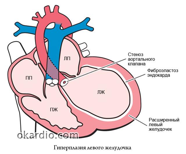 увеличение камеры левого желудочка
