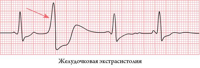 желудочковая экстрасистолия на ЭКГ