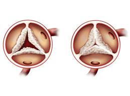 Стеноз аортального клапана: как и почему возникает, симптомы, как лечить