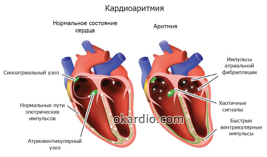 Аритмия сердца: виды симптомы и лечение опасной патологии