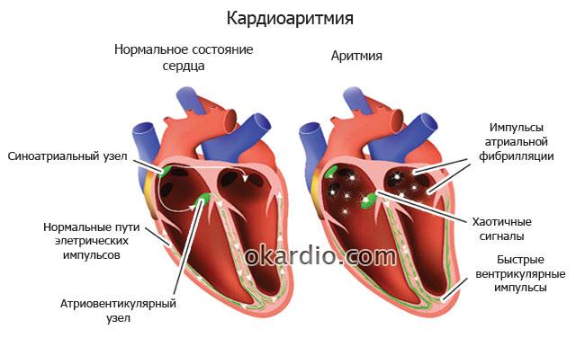 как происходит кардиоаритмия