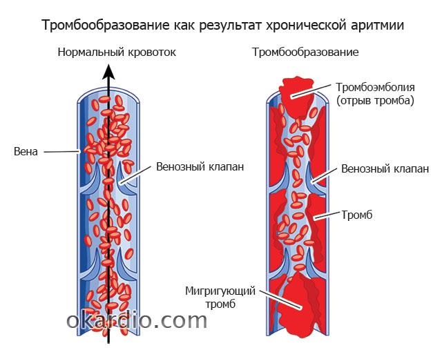 тромбообразование в результате аритмии
