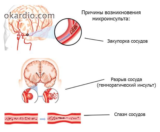 Микроинсульт: симптомы, первые признаки, лечение и последствия