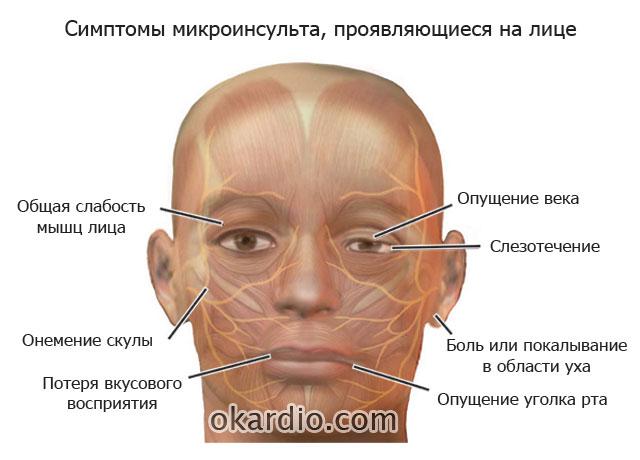 определение микроинсульта по лицу
