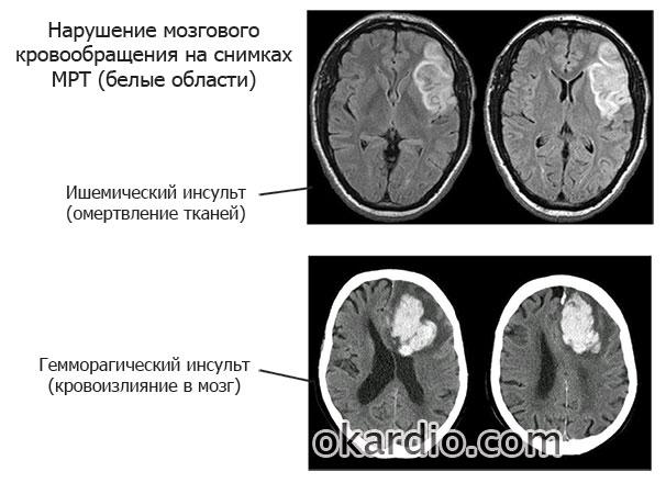 нарушение мозгового кровообращения на мрт