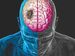 микроинсульт головного мозга