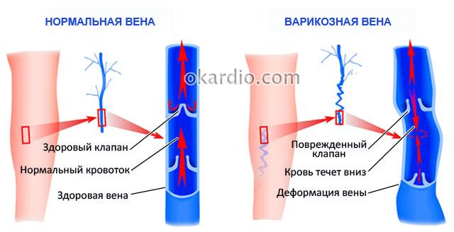 деформация сосудов и недостаточность внутрисосудистых клапанов при варикозе