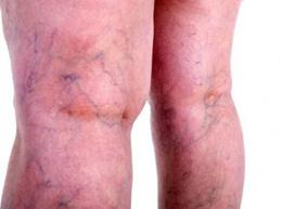 поверхностный варикоз на ногах