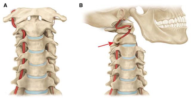 окклюзия (перекрытие) вращательной позвоночной артерии