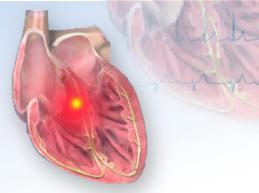 Что такое блокада сердца, почему возникает, ее степени, лечение