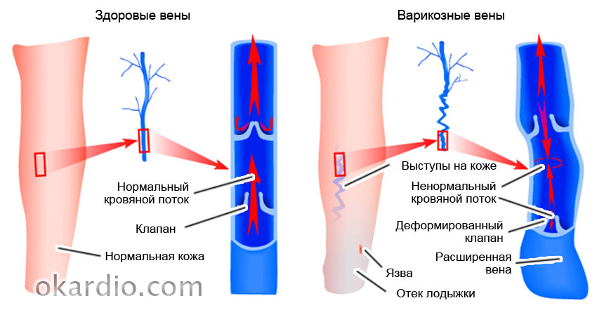 Какой врач лечит варикозное расширение вен на ногах пищевода и других органов