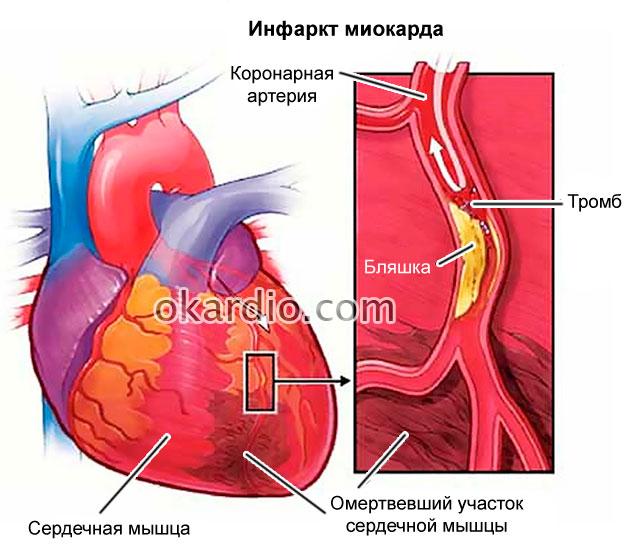 Аневризма левого желудочка сердца занятие сексом