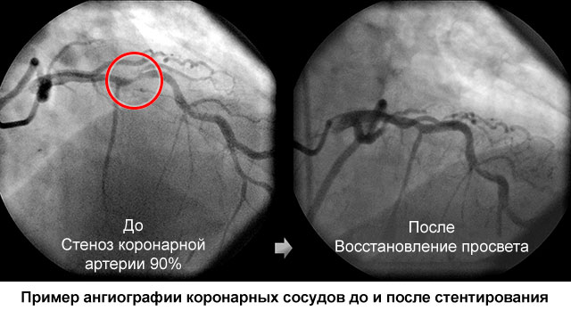пример ангиографии сосудов сердца до стентирования и после