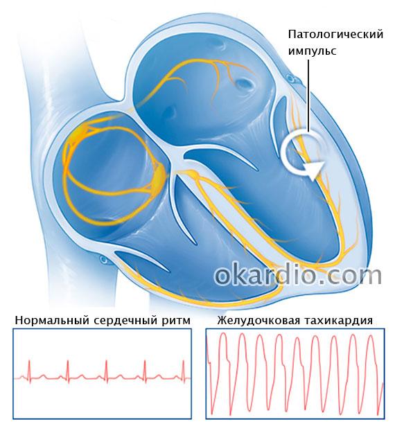 патологический импульс при желудочковой тахикардии