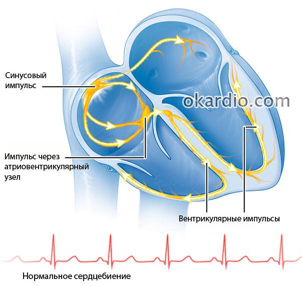 Желудочковая тахикардия: причины, виды, симптомы и проявления на ...