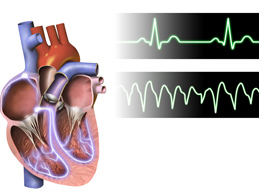 нормальное сердцебиение и желудочковая тахикардия