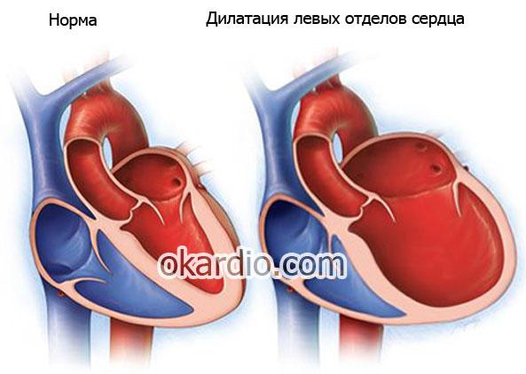Порок сердца: что это такое, причины, симптомы, лечение и прогноз