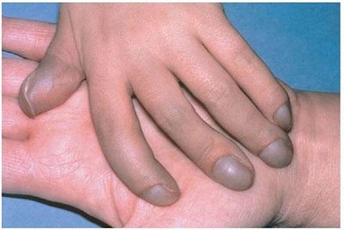 симптом барабанных палочек