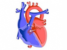 Врожденные и приобретенные пороки сердца: обзор патологии