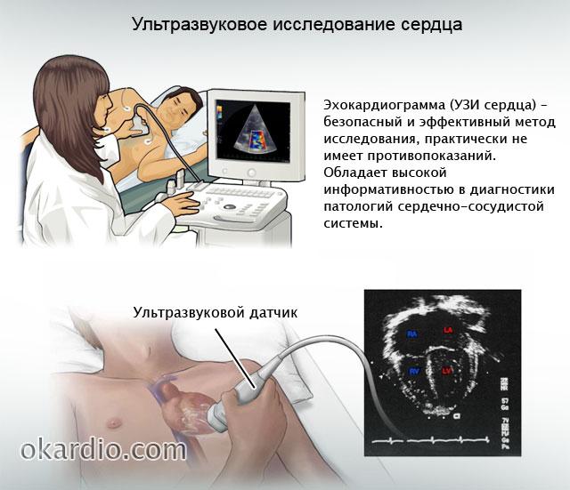 Блокада сердца: что это, причины, виды патологии, симптомы и лечение