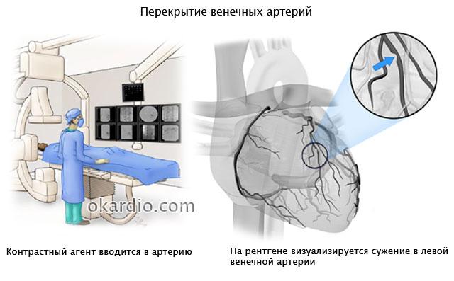 перекрытие венечных артерий