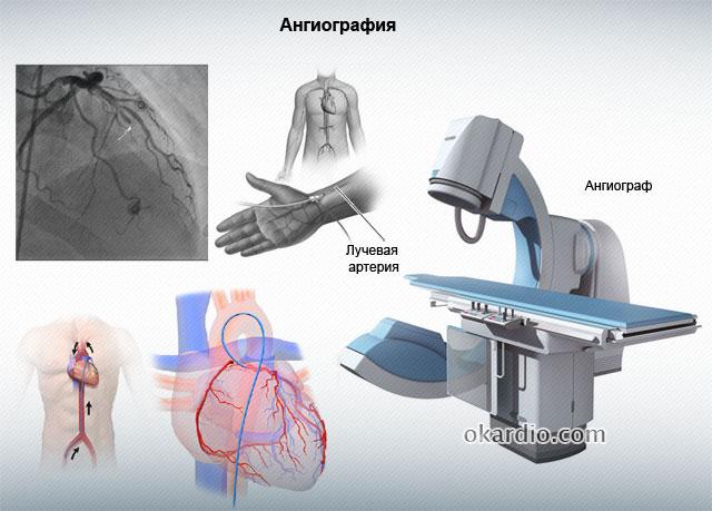 ангиография