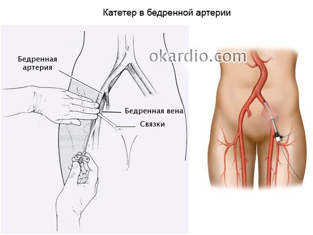 катетер в бедренной артерии
