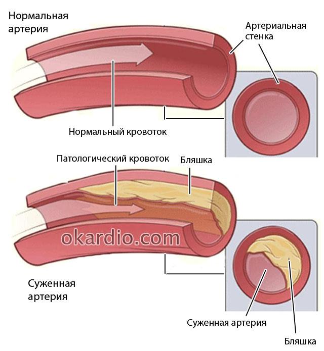 сужение артерии из-за атеросклеротической  бляшки