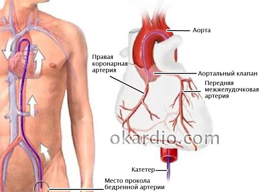 Стентирование коронарных артерий: суть процедуры, показания и ...