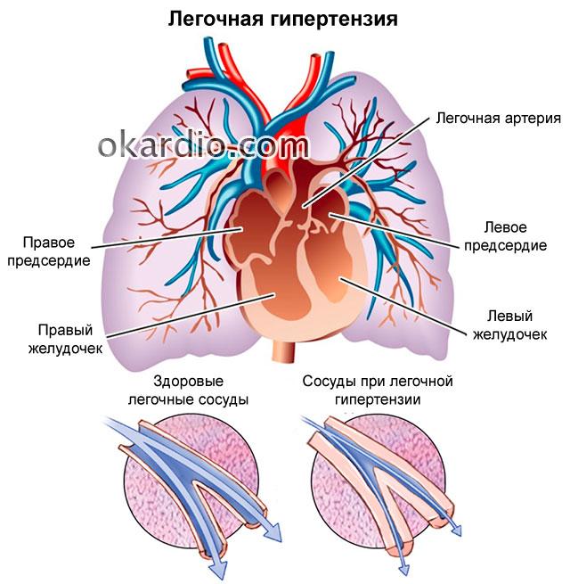 Как лечить гипертензию легких