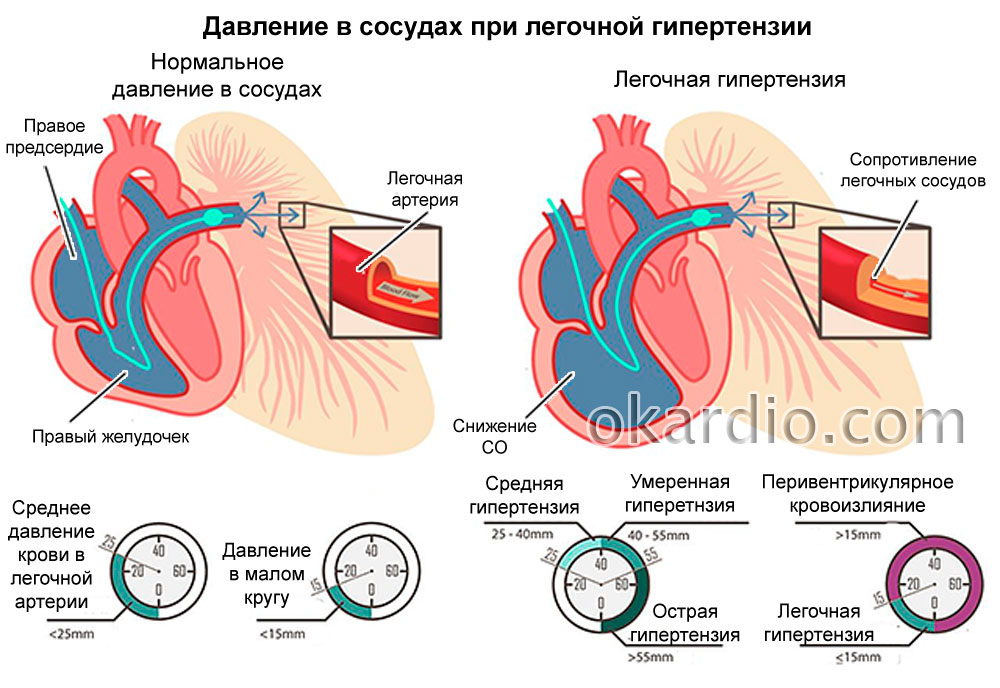 Hypertension Wbr Pulmonary Viagra