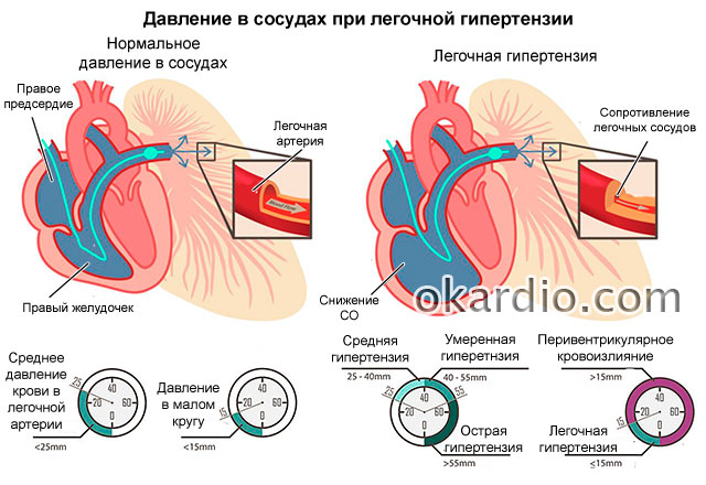 давление при диагнозе легочная гипертензия