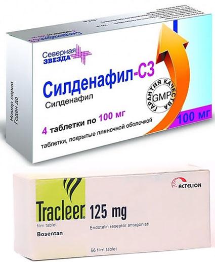 препараты Бозентан и Силденфил