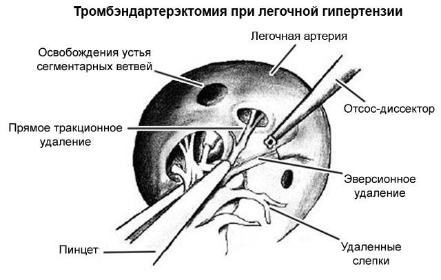 тромбэндартерэктомия