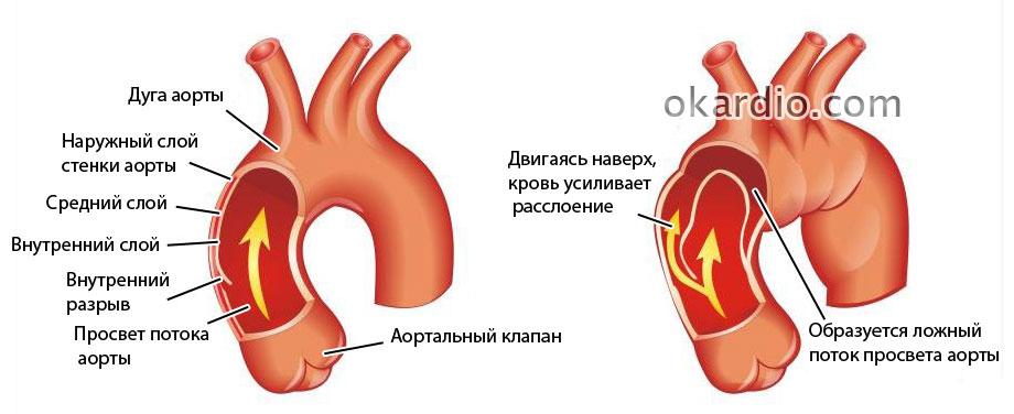 Расслоение аорты: полное описание, причины, виды, симптомы и лечение