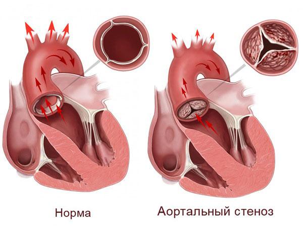 строение аортального клапана в норме и при стенозе
