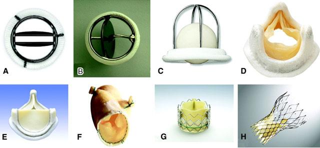 различные типы протезных клапанов