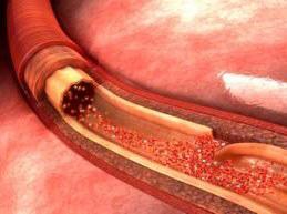 аорта в разрезе