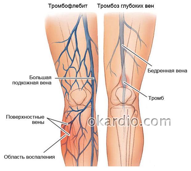 тромбофлебит и тромбоз вен нижних конечностей