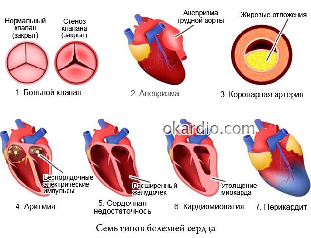 семь типов болезней сердца