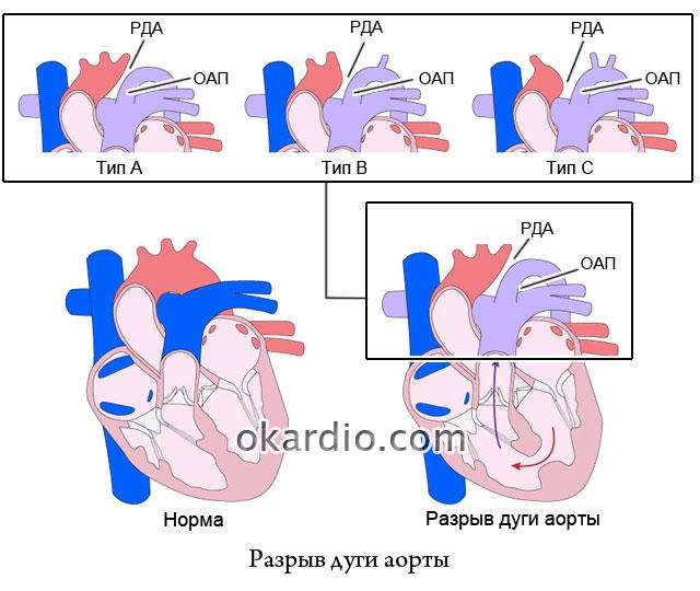 перерыв дуги аорты