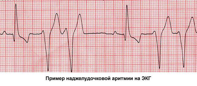 пример наджелудочковой аритмии