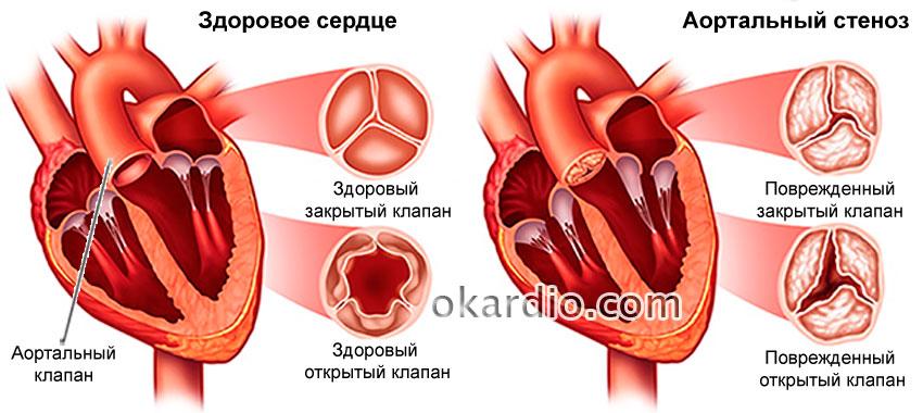 Блокаторы кальциевых каналов: список препаратов, механизм действия ...
