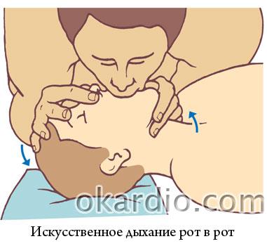 искусственное дыхание рот в рот